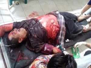 Poto : Kondisi korban saat dalam penanganan tim medis Puskesmas Blega (dokumen)