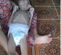 Azkha Penderita Kelemahan Otak Butuh Dana Perobatan, Tidak Ada Dermawan Di Jambi?